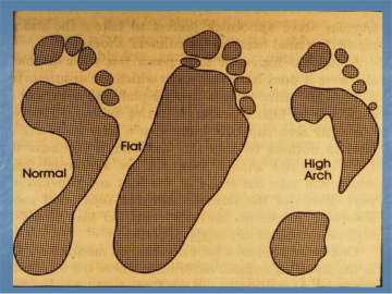 Basic Foot Types