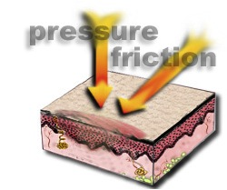 Pressure Friction